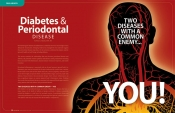Diabetes & Periodontal Disease