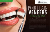 Porcelain Veneers — Without A Drill