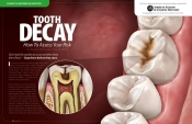 Tooth Decay — How To Assess Your Risk