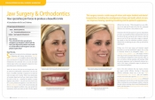 Jaw Surgery & Orthodontics