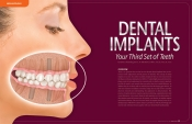 Dental Implants — Your Third Set of Teeth