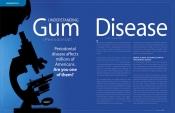 Understanding Gum (Periodontal) Disease