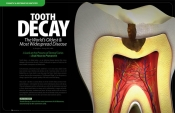 What is Tooth Decay? — And How to Prevent It!