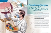 Periodontal Surgery — Where Art Meets Science