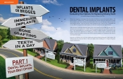 Dental Implants — Evaluating Your Options for Replacing Missing Teeth