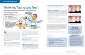 Whitening Traumatized Teeth