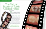 The Natural Beauty of Tooth Colored Fillings