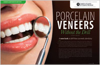 Porcelain Veneers – Without A Drill - Dear Doctor Magazine