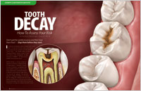 Dental Education East Aurora - Tooth Decay Dear Doctor Magazine