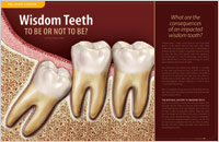 Wisdom Teeth – To Be Or Not To Be - Dear Doctor Magazine