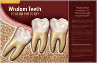 Wisdom Teeth – Dear Doctor Magazine