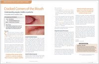 Cracked Corners of the Mouth - Dear Doctor Magazine