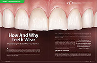 Teeth Wear - Dear Doctor Magazine