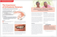 Orthodontic Retainers - Dear Doctor Magazine