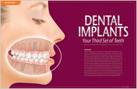 Dental Implants - Your Third Set of Teeth - Dear Doctor Magazine