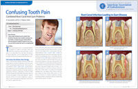 Confusing Tooth Pain - Dear Doctor Magazine