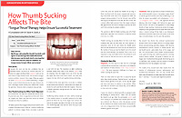 How Thumb Sucking Affects The Bite - Dear Doctor Magazine