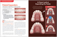 Palatal Expanders - Dear Doctor Magazine