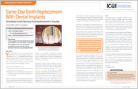 Immediate Dental Implants - Dear Doctor Magazine