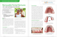 Removable Partial Dentures - Dear Doctor Magazine