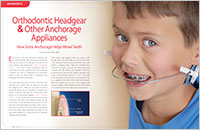 Orthodontic Headgear - Dear Doctor Magazine