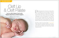 Cleft Lip and Cleft Palate - Dear Doctor Magazine