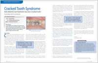 Cracked Tooth Syndrome - Dear Doctor Magazine