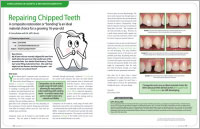 Repairing Chipped Teeth - Dear Doctor Magazine