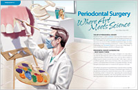 Periodontal (Gum) Surgery - Dear Doctor Magazine