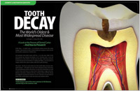 What is Tooth Decay? - And How to Prevent It - Dear Doctor Magazine
