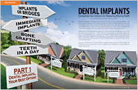 dental implants dear doctor Dentures & Dental Implants