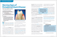 Warning Signs of Gum Disease - Dear Doctor Magazine