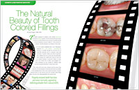Dental Education East Aurora - Tooth Colored Fillings Dear Doctor Magazine